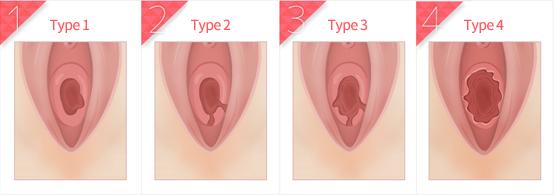 lang Maagd vaginaal